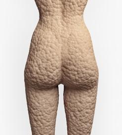 cellulite texture on the human skin (illustrationconcept)
