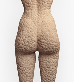 cellulite texture on the human skin (illustrationconcept)