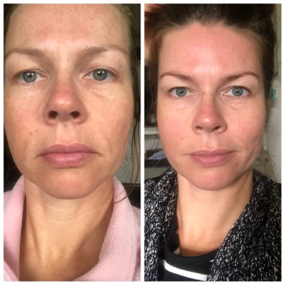 voor & na (week verschil)
